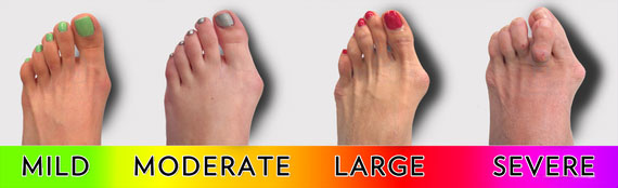 bunion-foots
