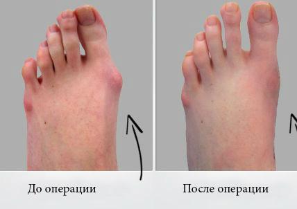 Операция по быстрому удалению косточек на ногах