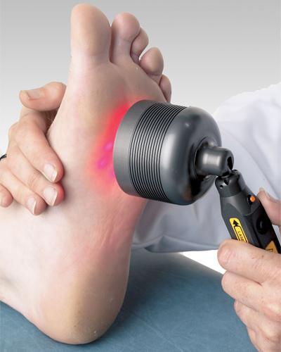 Удаление косточек на ногах реабилитация осложнения