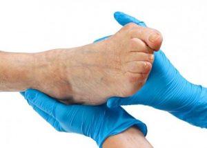 Удаление шишек больших пальцев ног