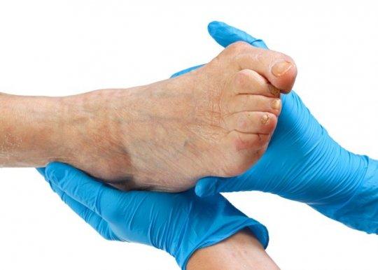 Косточка на ноге причины возникновения проблемы
