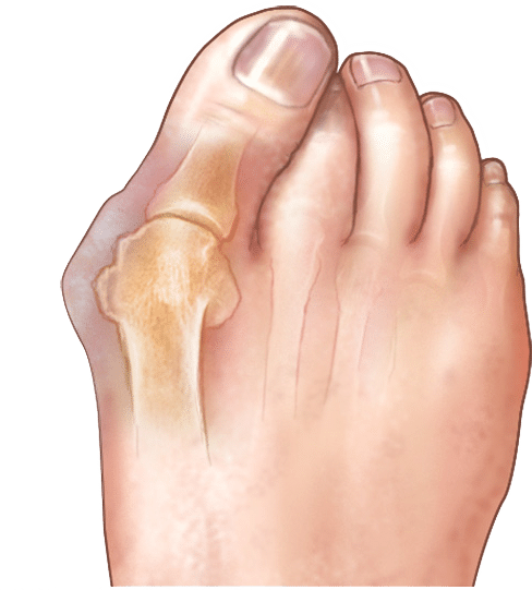 Косточки на ногах лечение стоимость